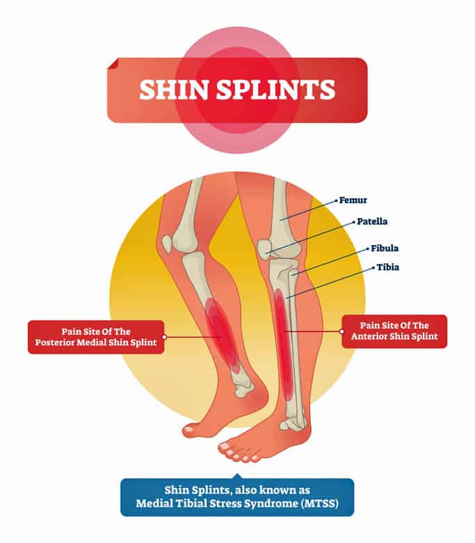 Diagram of where shun splints occur in the lower legs